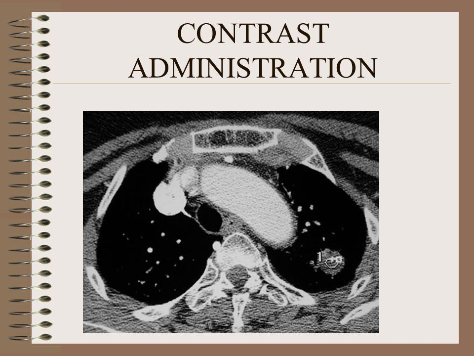 CONTRAST ADMINISTRATION