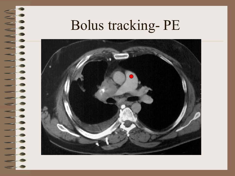 Bolus tracking- PE