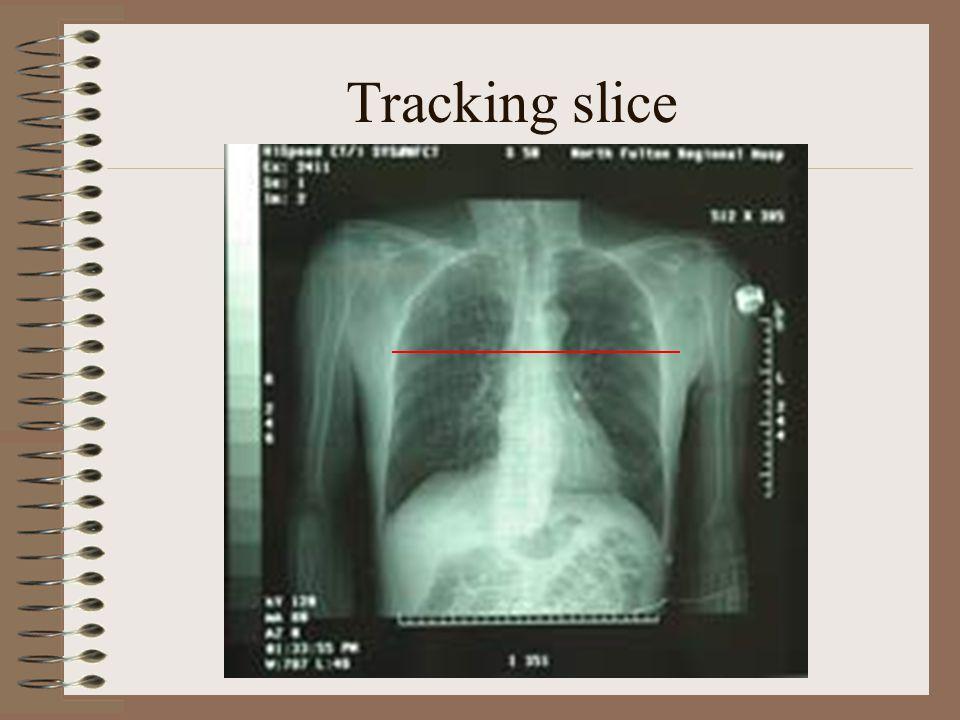 Tracking slice