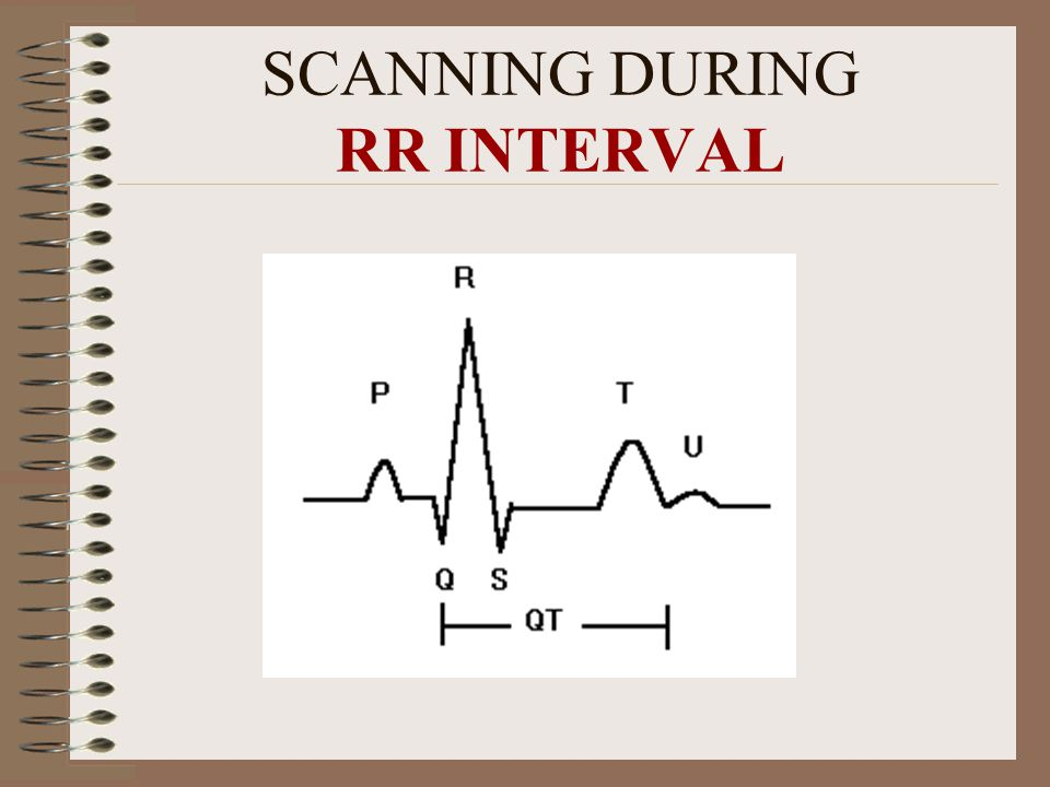 SCANNING DURING RR INTERVAL