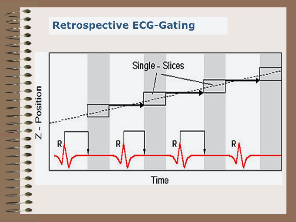 Retrospective ECG-Gating