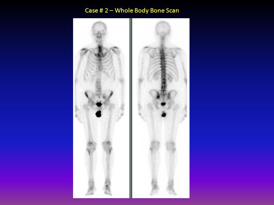 Case # 2 – Whole Body Bone Scan