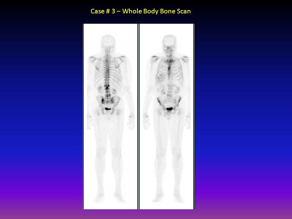 Case # 3 – Whole Body Bone Scan