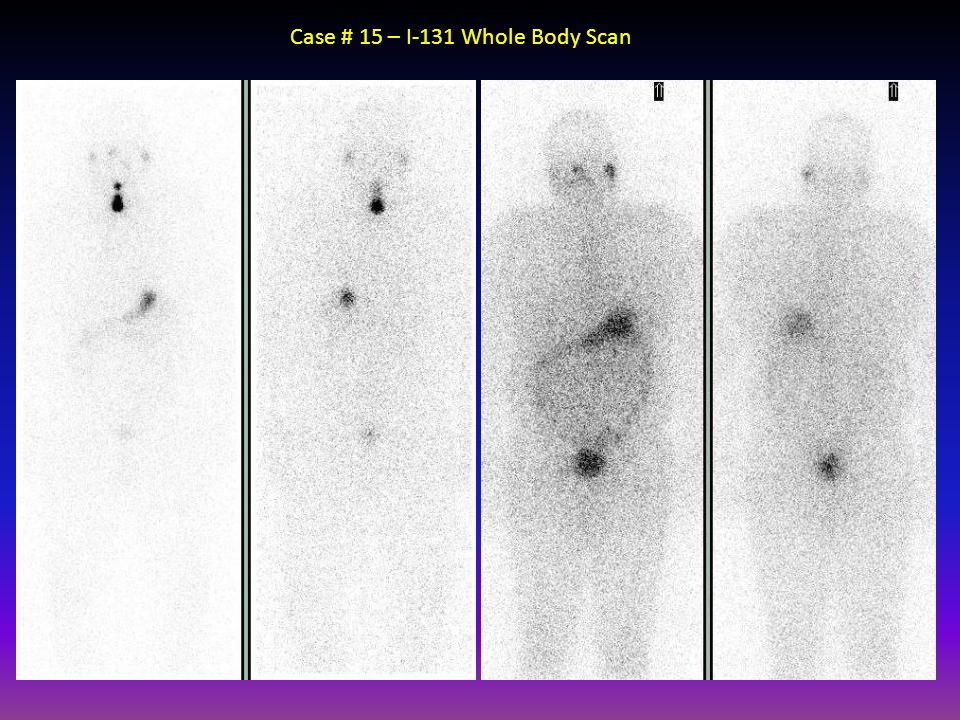 Case # 15 – I-131 Whole Body Scan