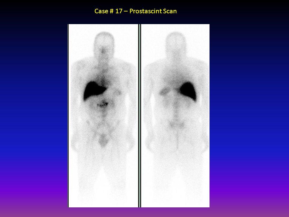 Case # 17 – Prostascint Scan
