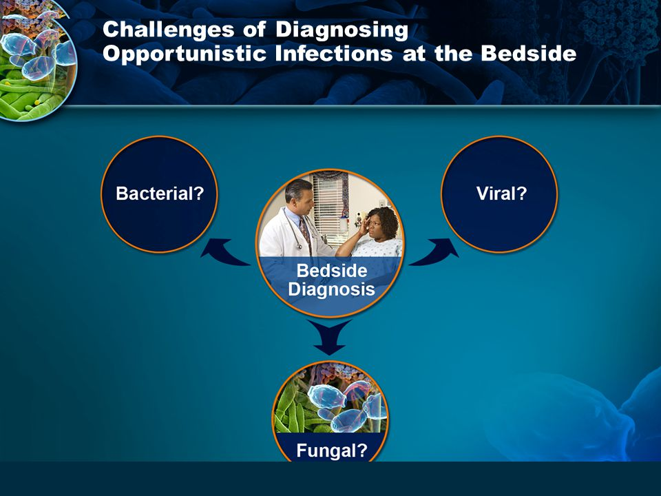 Challenges of Diagnosing Opportunistic Infections at the Bedside