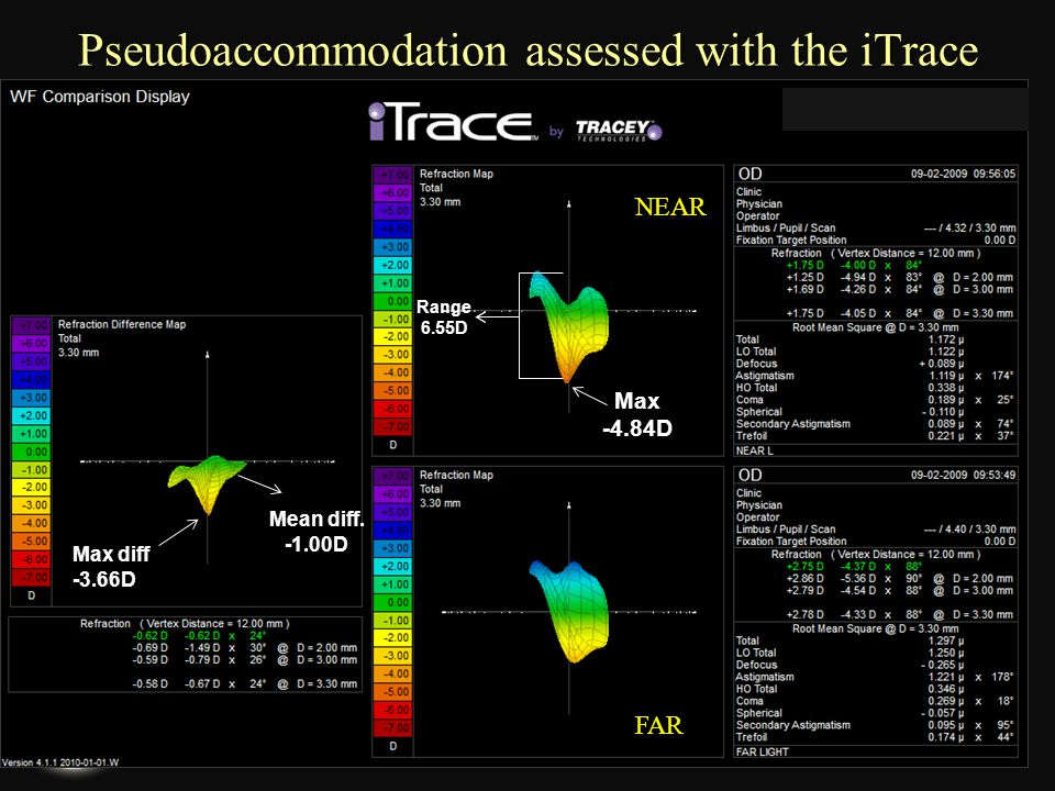 Pseudoaccommodation assessed with the iTrace
