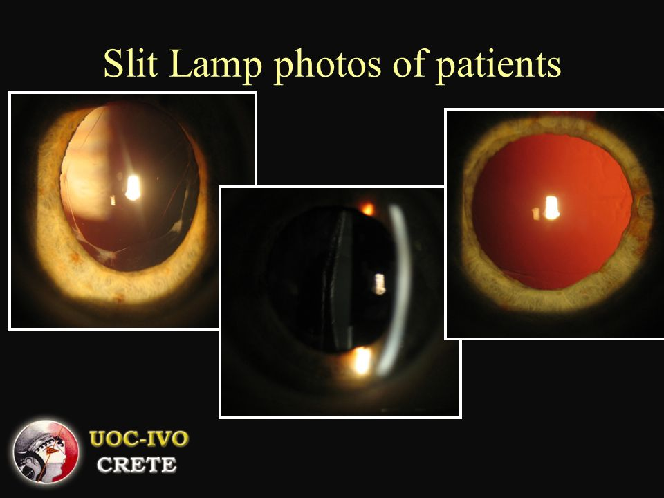 Slit Lamp photos of patients
