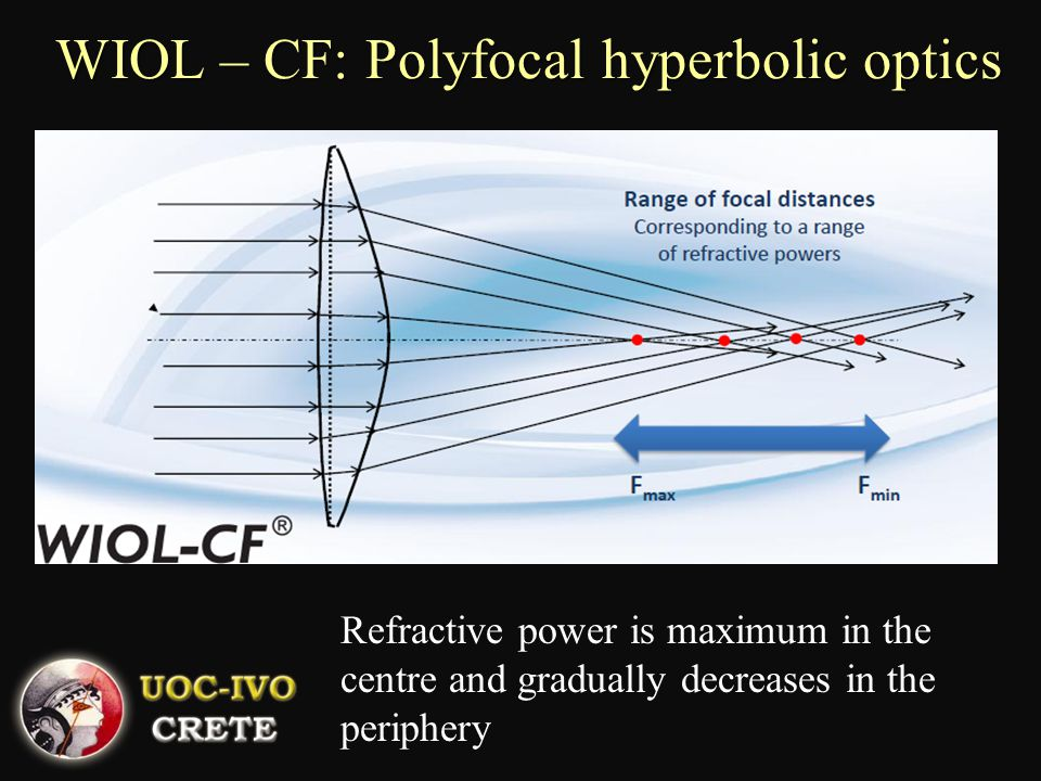 WIOL – CF: Polyfocal hyperbolic optics