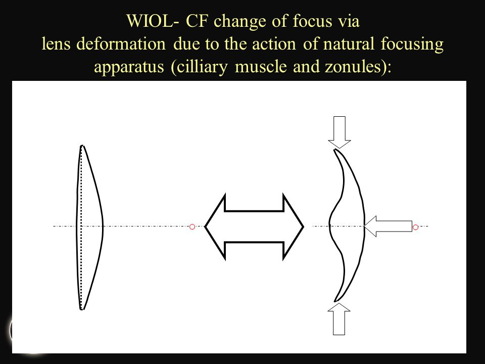 WIOL- CF change of focus via lens deformation due to the action of natural focusing apparatus (cilliary muscle and zonules):