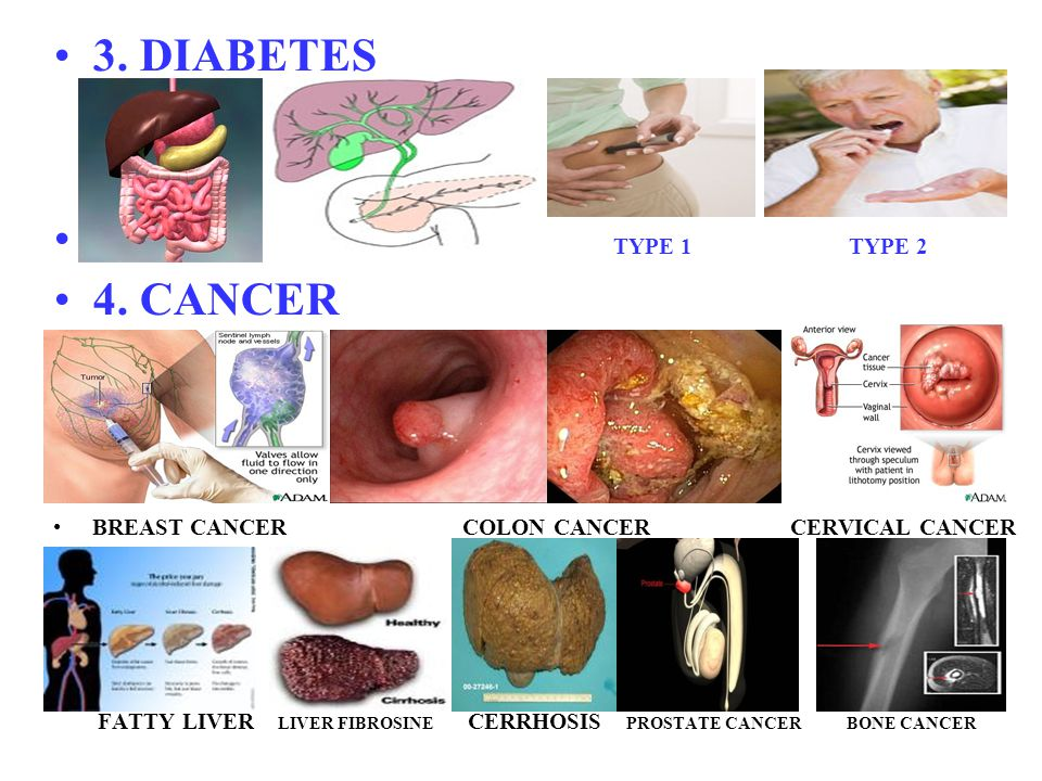 3. DIABETES TYPE 1 TYPE 2 4. CANCER