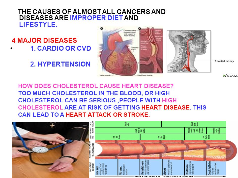 THE CAUSES OF ALMOST ALL CANCERS AND DISEASES ARE IMPROPER DIET AND LIFESTYLE.