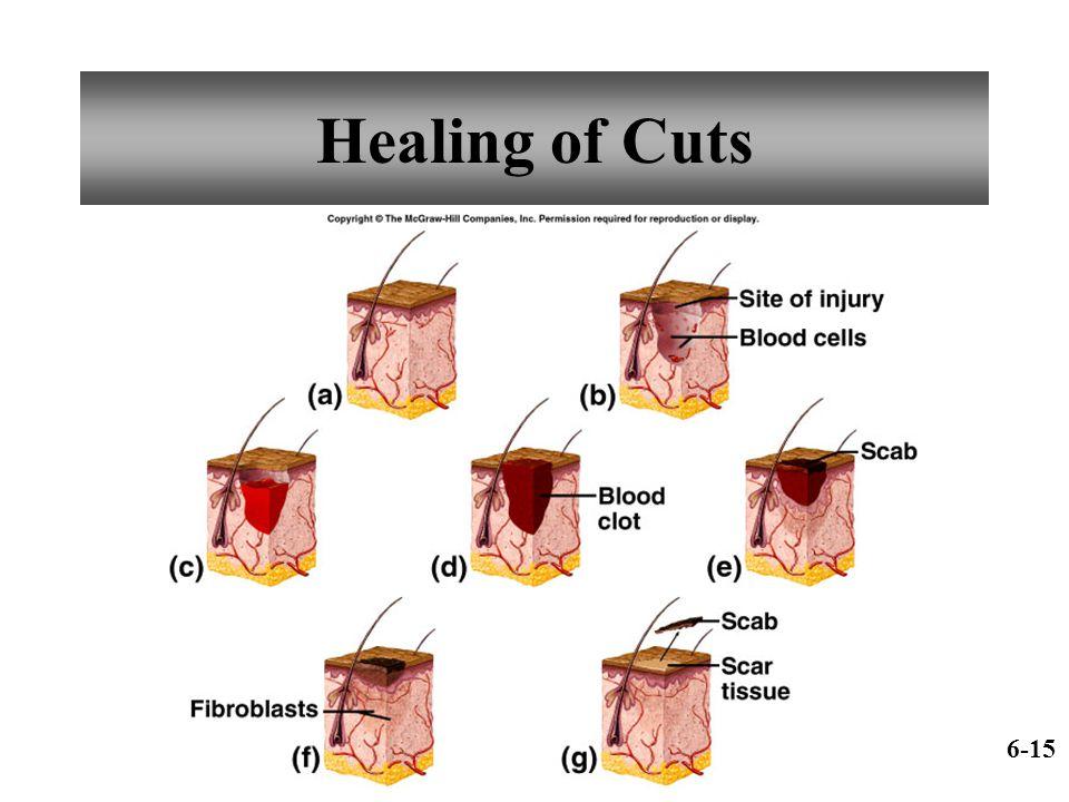 Healing of Cuts 6-15