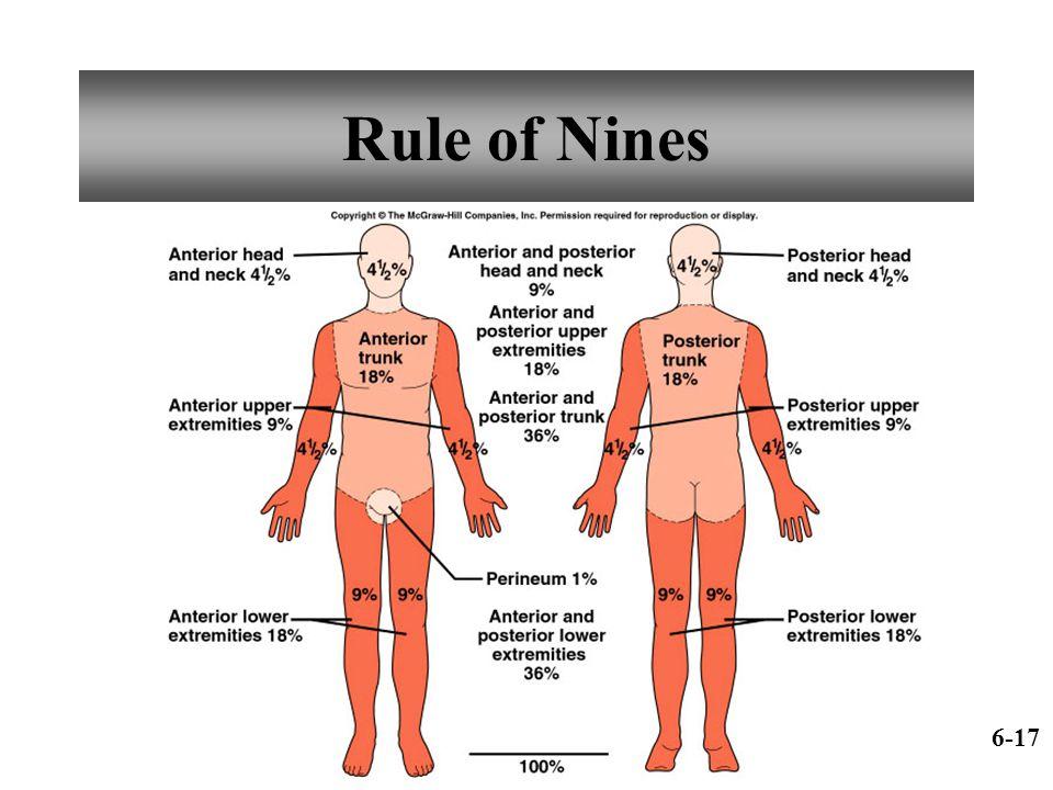 Rule of Nines 6-17