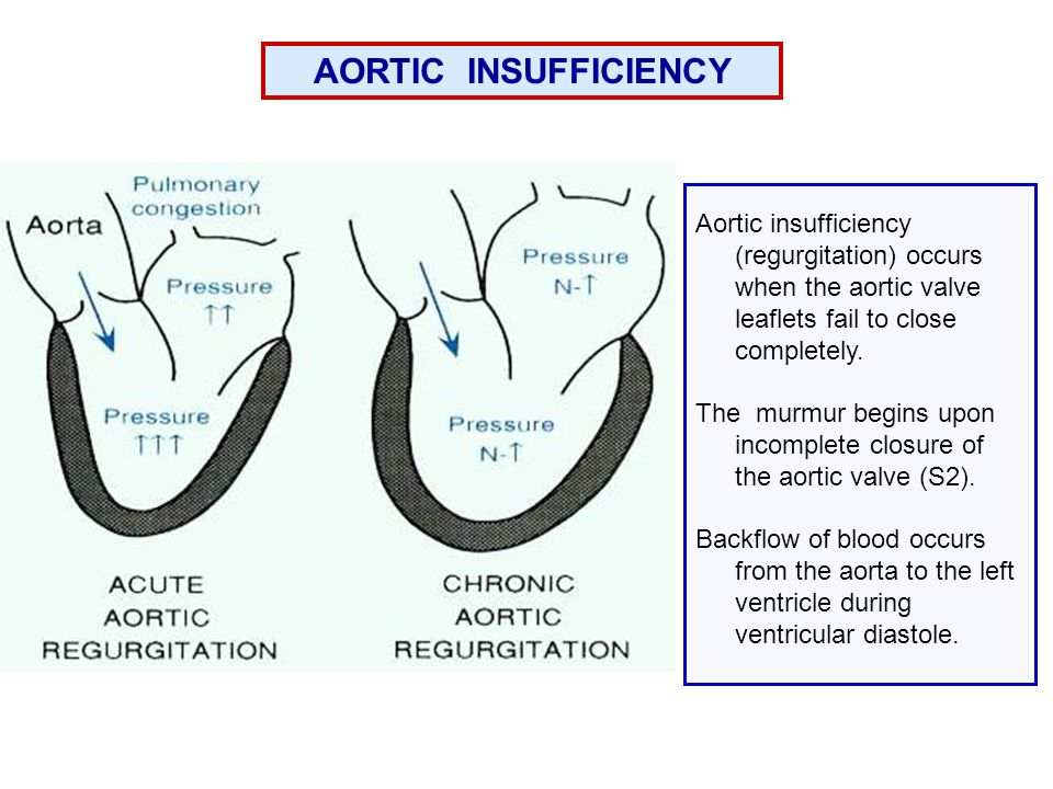 AORTIC INSUFFICIENCY Aortic insufficiency (regurgitation) occurs when the aortic valve leaflets fail to close completely.