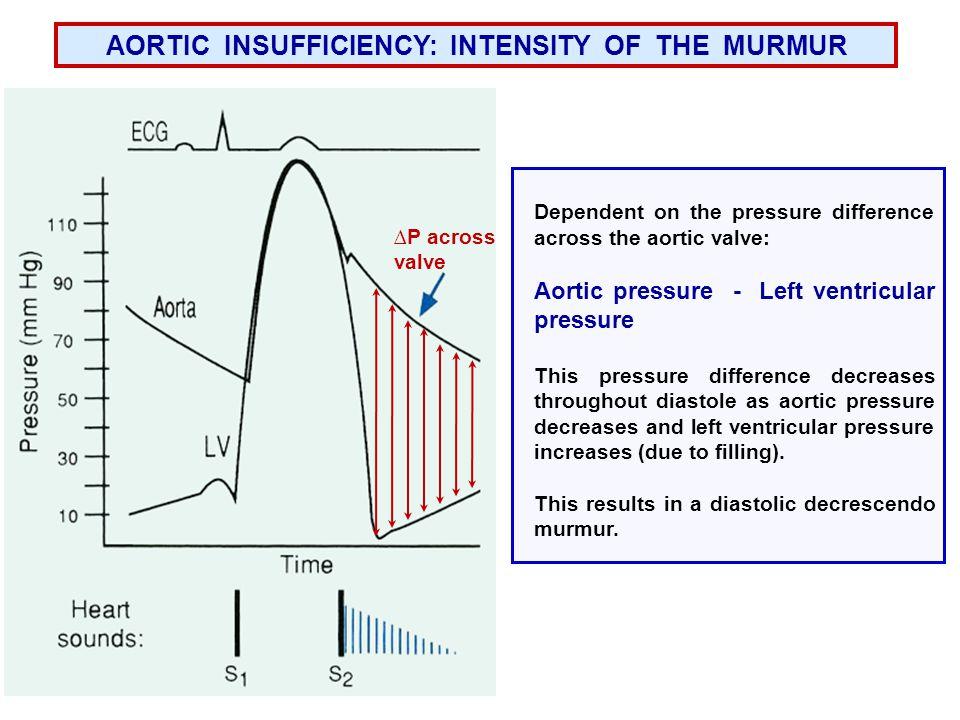 AORTIC INSUFFICIENCY: INTENSITY OF THE MURMUR