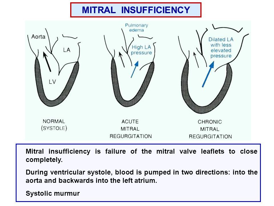 MITRAL INSUFFICIENCY Mitral insufficiency is failure of the mitral valve leaflets to close completely.