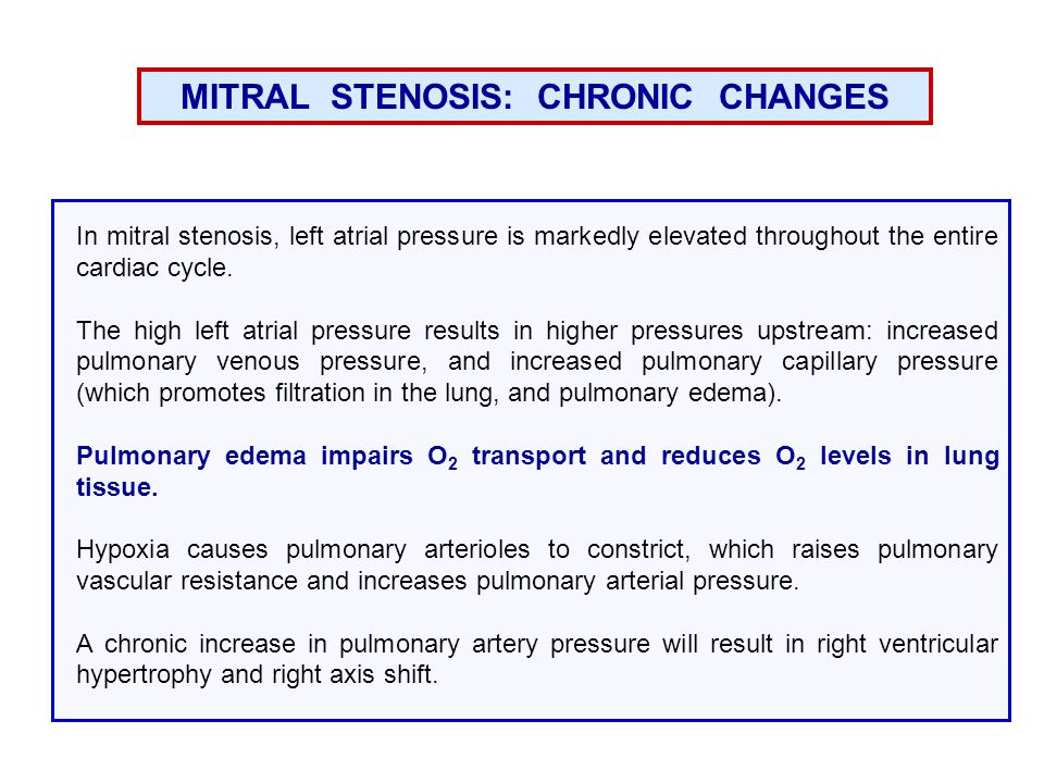MITRAL STENOSIS: CHRONIC CHANGES