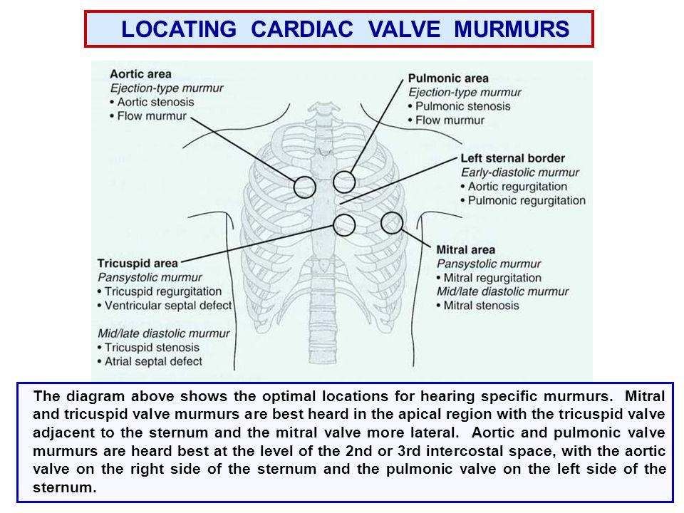 LOCATING CARDIAC VALVE MURMURS