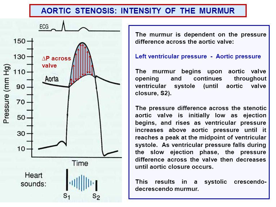AORTIC STENOSIS: INTENSITY OF THE MURMUR