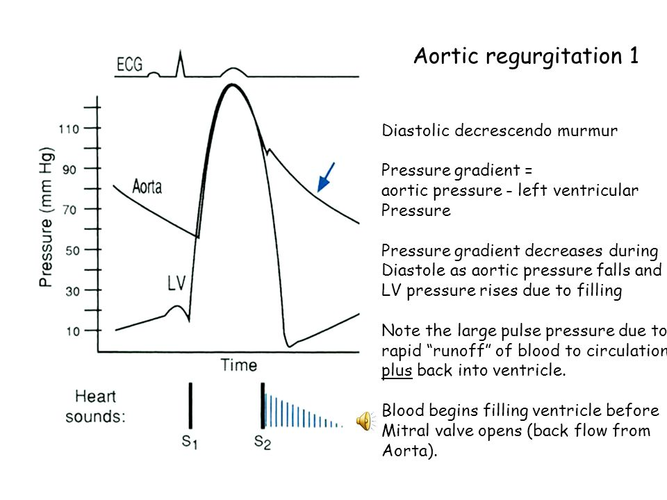 Aortic regurgitation 1 Diastolic decrescendo murmur