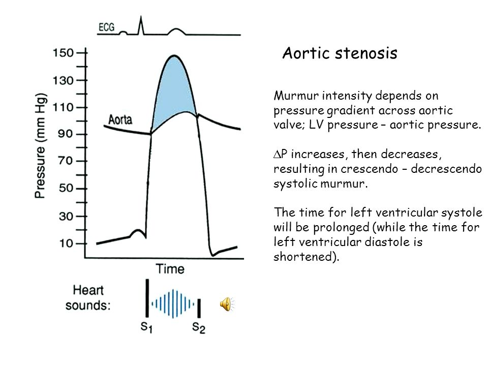 Aortic stenosis Murmur intensity depends on pressure gradient across aortic valve; LV pressure – aortic pressure.