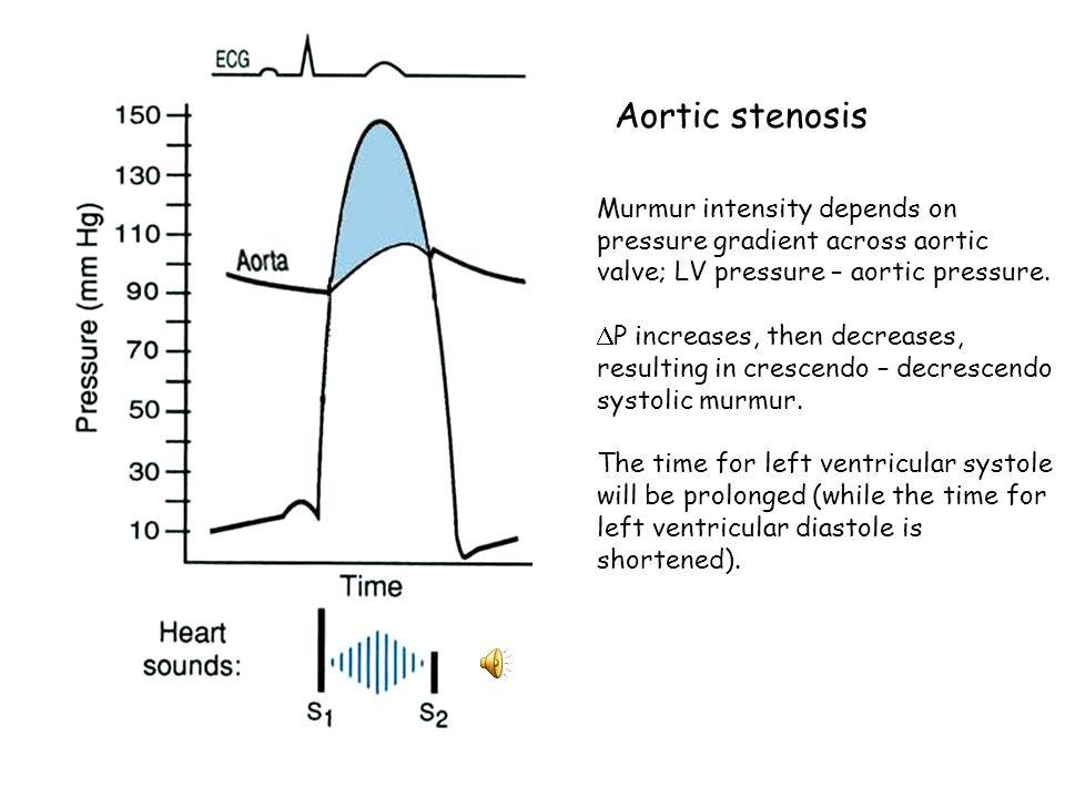 Aortic stenosis Murmur intensity depends on pressure gradient across aortic valve; LV pressure – aortic pressure.