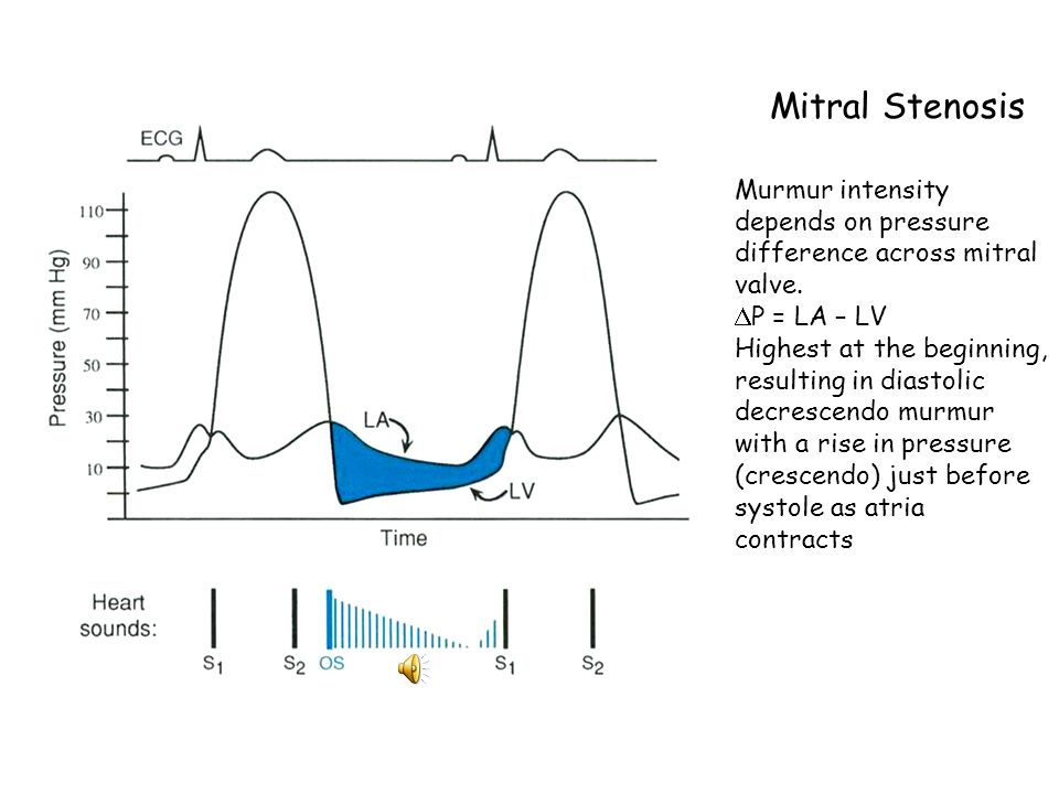 Mitral Stenosis Murmur intensity depends on pressure difference across mitral valve. P = LA – LV.