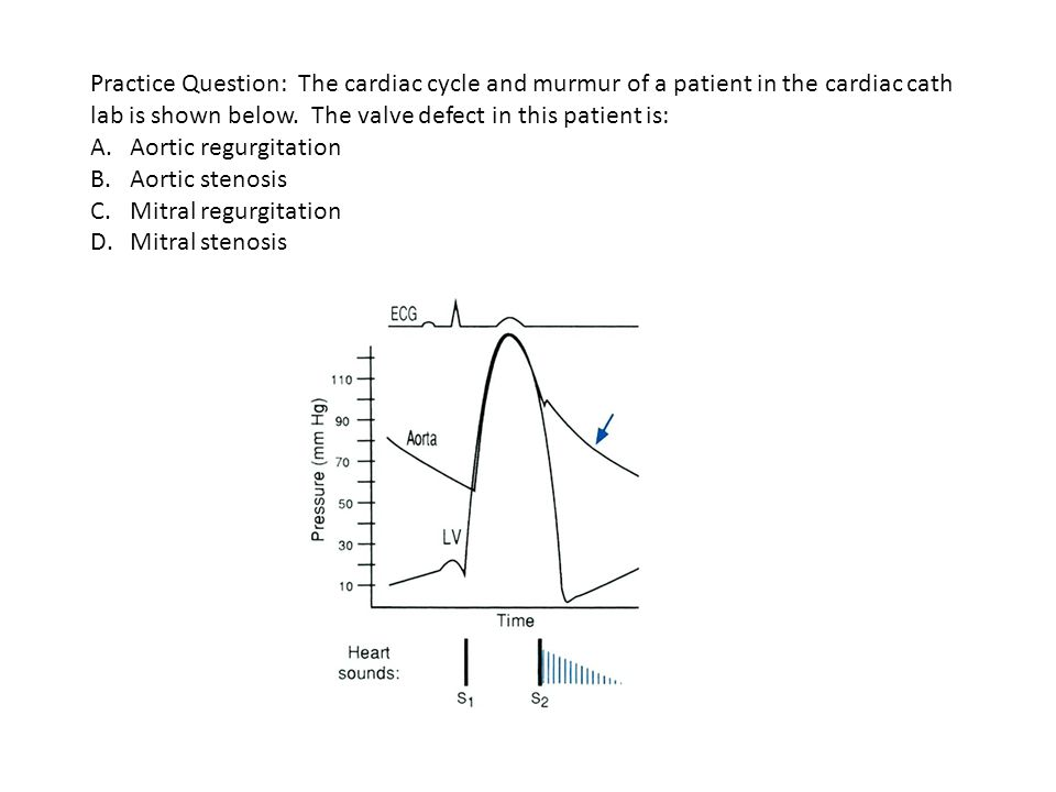 Practice Question: The cardiac cycle and murmur of a patient in the cardiac cath