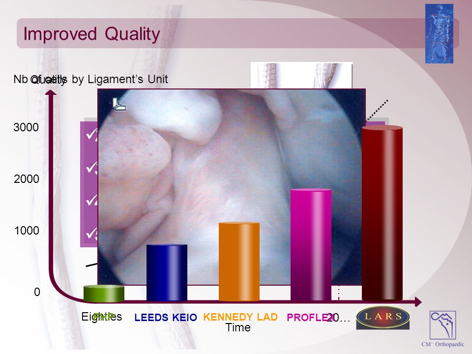  Improved Quality 2 500 N for 60 fibers ligaments