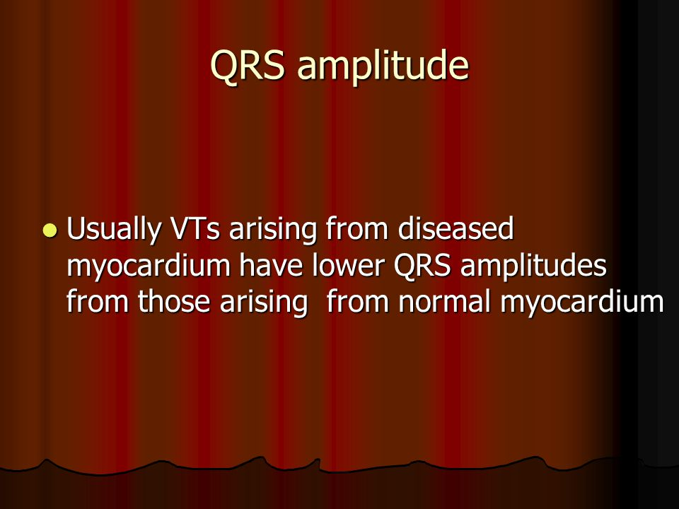 QRS amplitude Usually VTs arising from diseased myocardium have lower QRS amplitudes from those arising from normal myocardium.