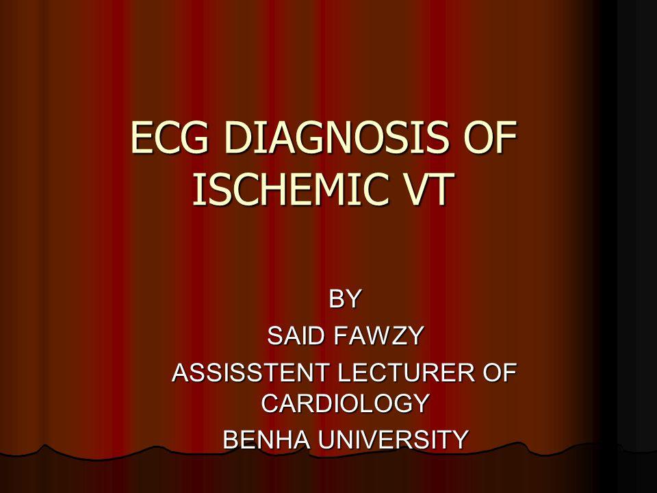 ECG DIAGNOSIS OF ISCHEMIC VT