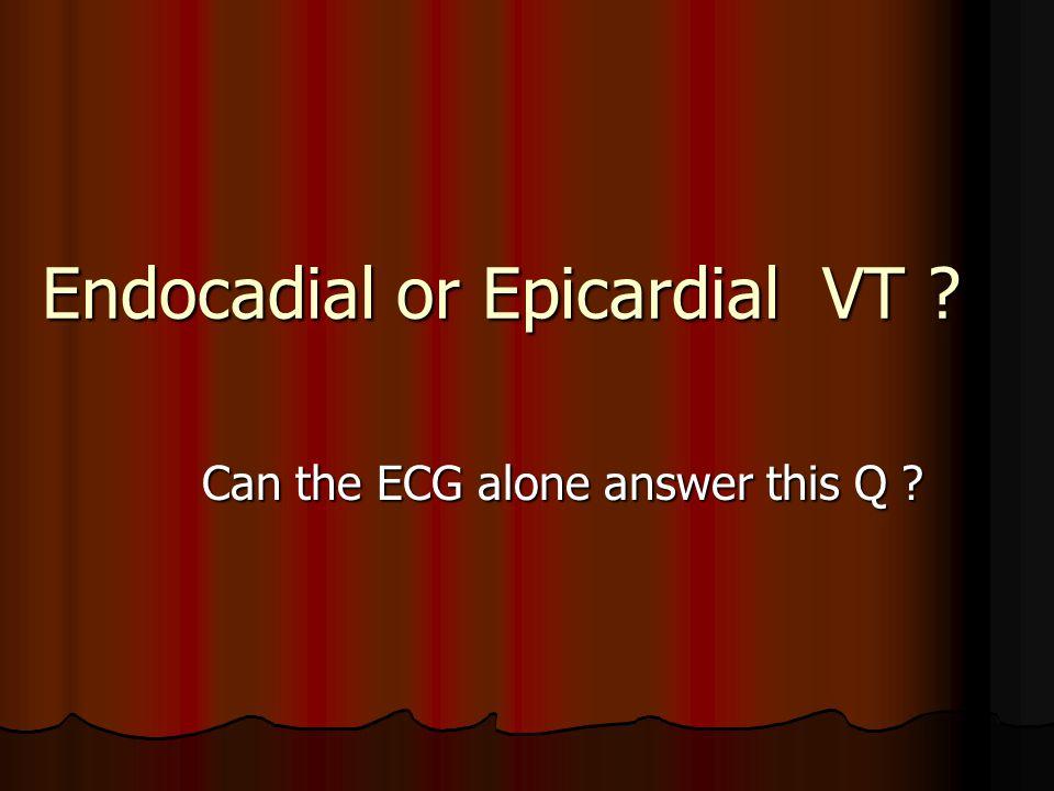 Endocadial or Epicardial VT