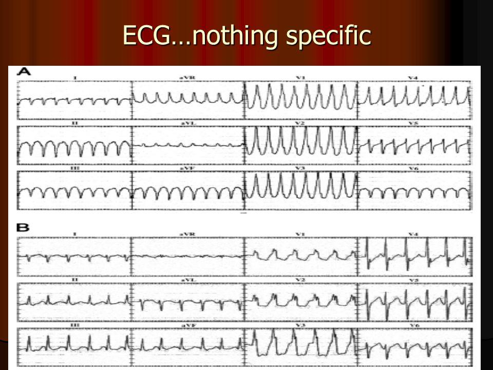 ECG…nothing specific