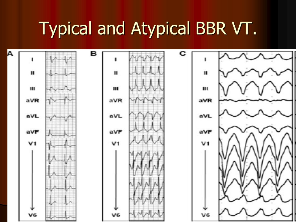 Typical and Atypical BBR VT.