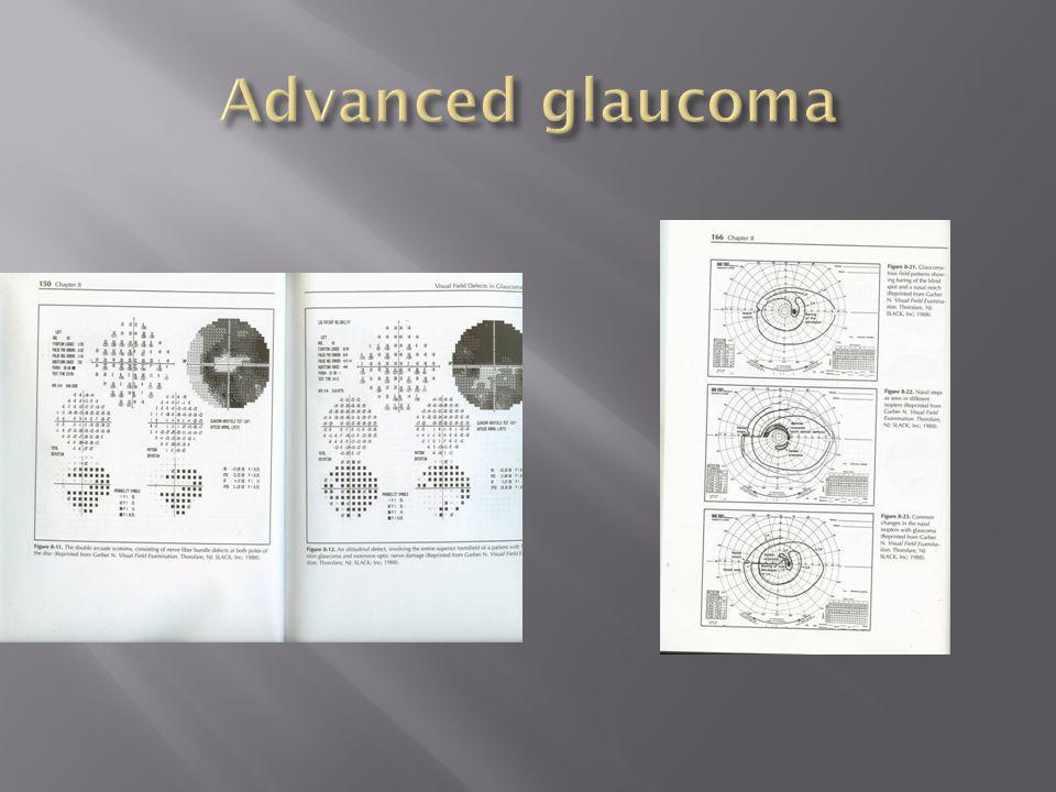 Advanced glaucoma