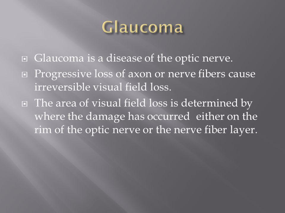 Glaucoma Glaucoma is a disease of the optic nerve.