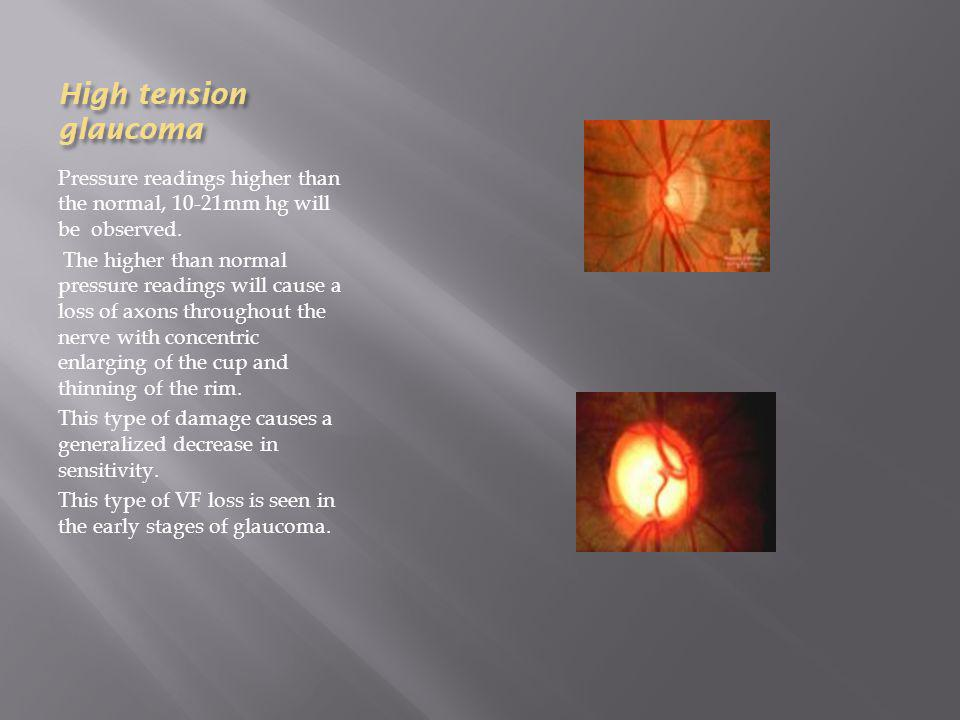 High tension glaucoma Pressure readings higher than the normal, 10-21mm hg will be observed.