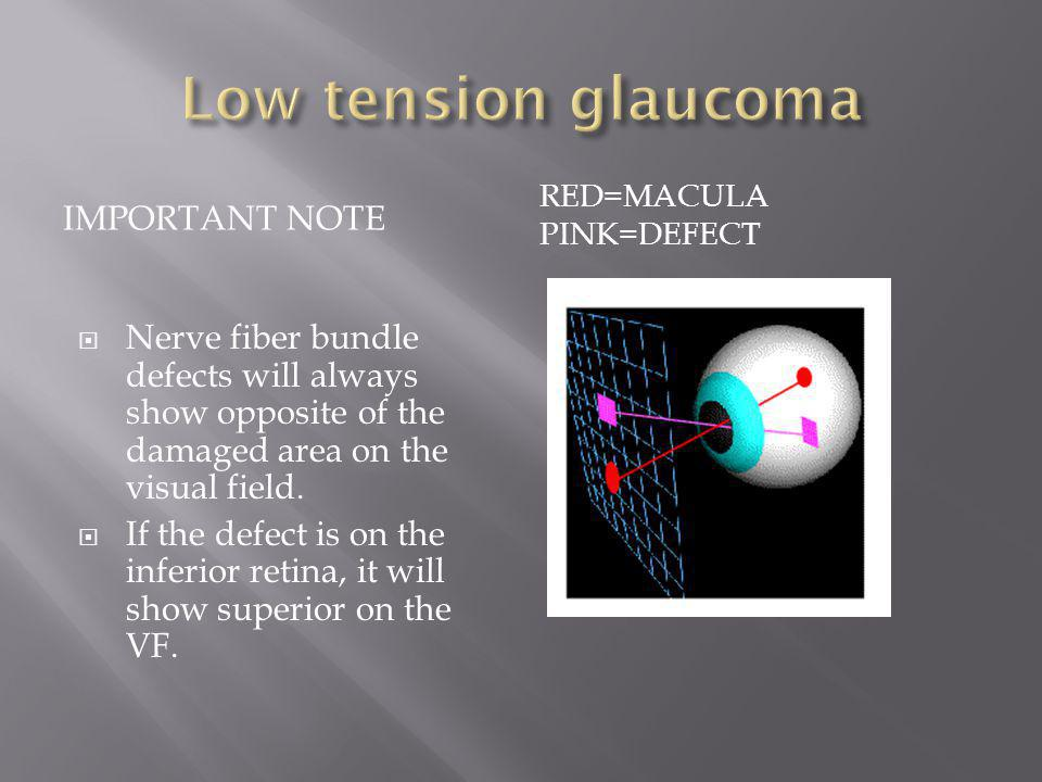 Low tension glaucoma Important note