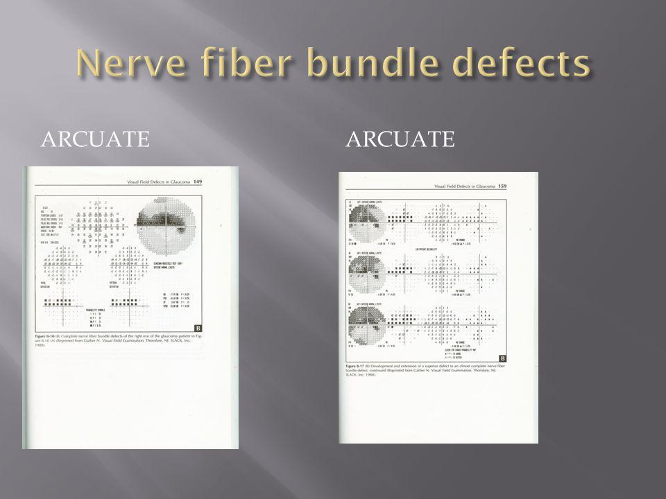 Nerve fiber bundle defects