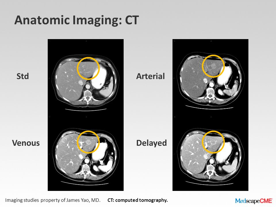 Anatomic Imaging: CT Std Arterial Venous Delayed