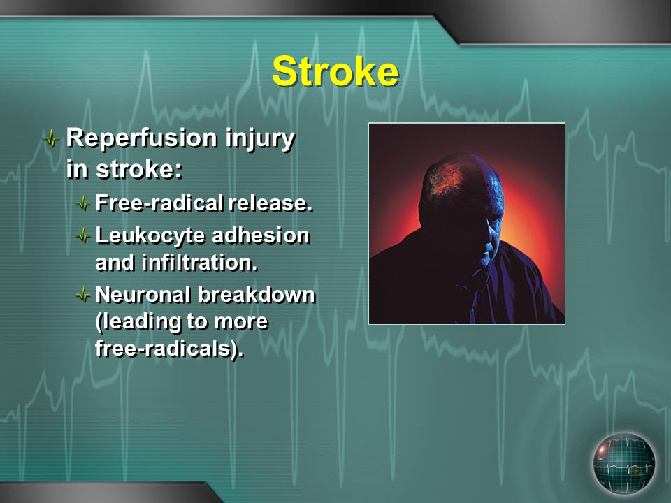 Stroke Reperfusion injury in stroke: Free-radical release.