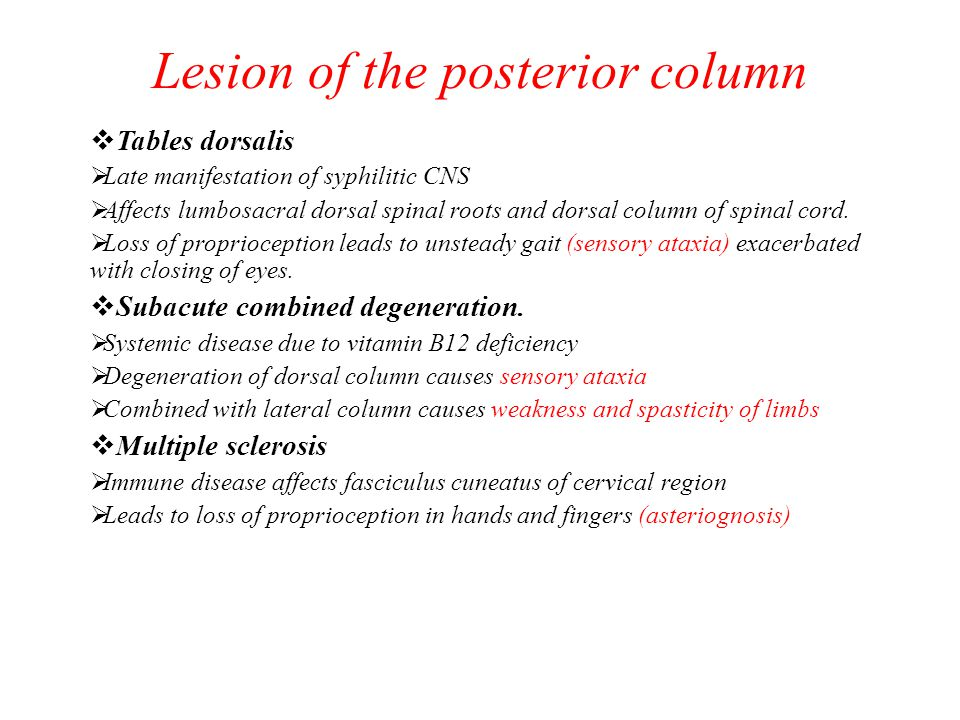 Lesion of the posterior column