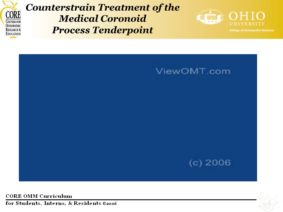 Counterstrain Treatment of the Medical Coronoid Process Tenderpoint