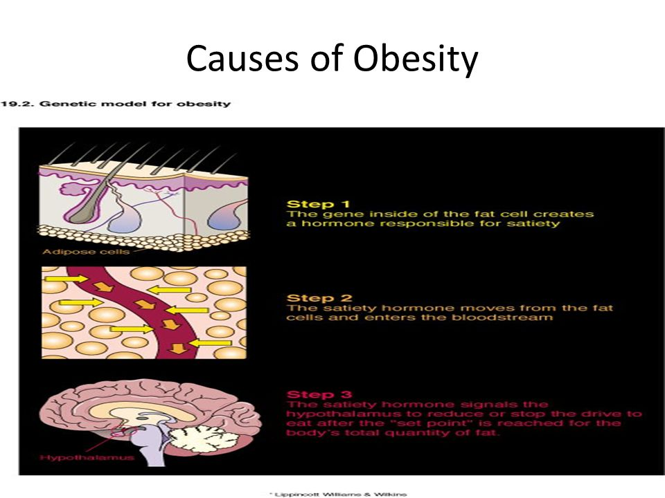 the importance and causes of obesity Essay about causes of obesity service provides obesity essay and some important details and you may have had it about yourself what do the points mean.