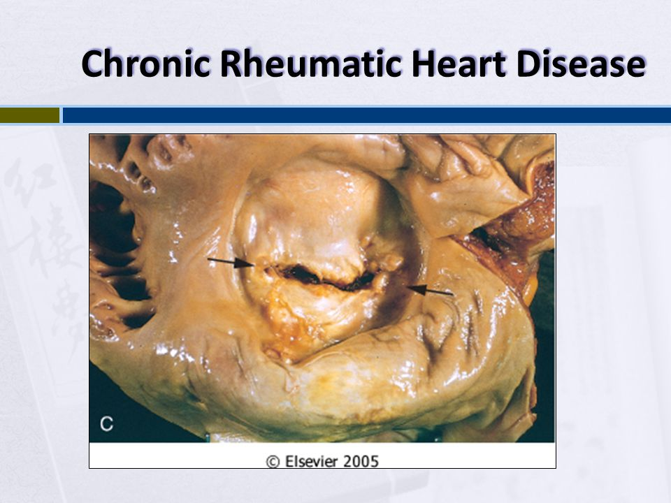 Chronic Rheumatic Heart Disease
