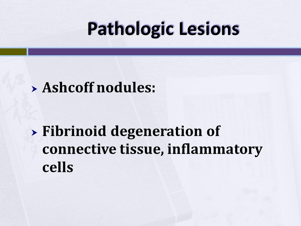 Pathologic Lesions Ashcoff nodules: