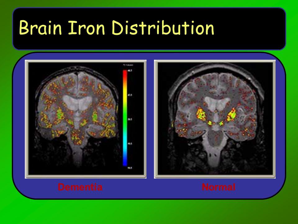 Brain Iron Distribution