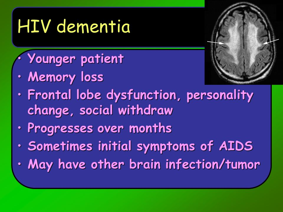 HIV dementia Younger patient Memory loss