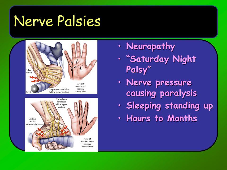 Nerve Palsies Neuropathy Saturday Night Palsy
